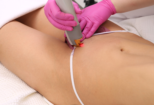 Bikini Line Laser Hair Removal In Vancouver Yaletown Limelight