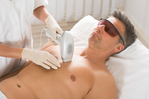body hair laser removal