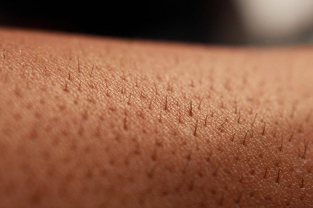 Why You Should Consider Laser Hair Removal