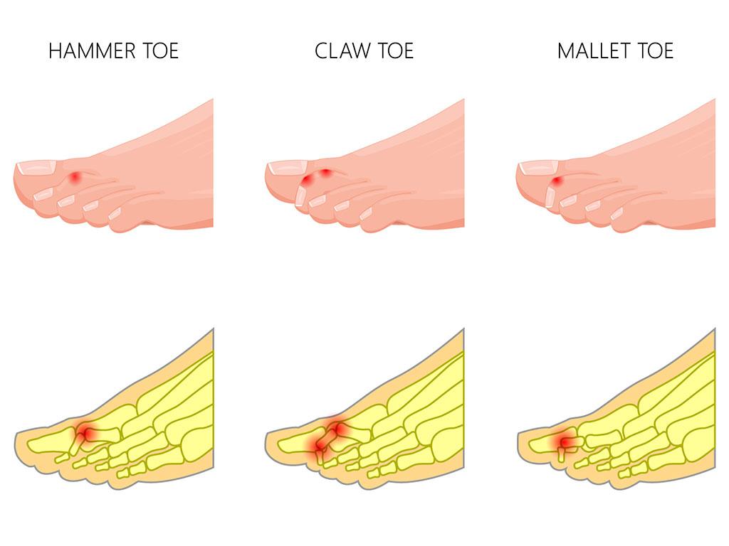Toe Deformity